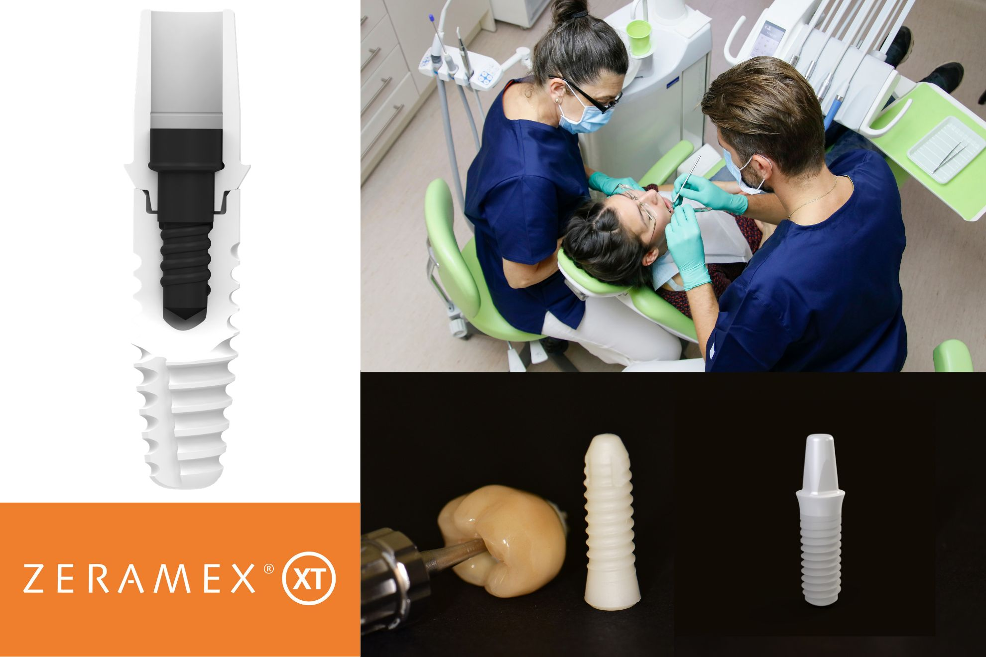 100% Metal-free Ceramic Dental Implants - Hungary - Budapest.jpg